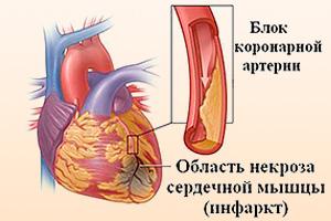 Некроз сердечной мышцы