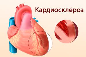 Кардиосклероз после инфаркта миокарда