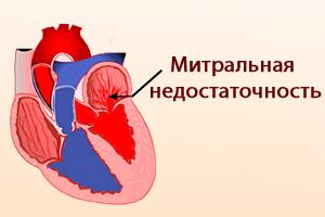 Митральная недостаточность после инфаркта миокарда
