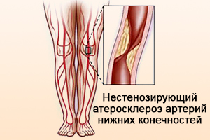 Нестенозирующий атеросклероз артерий ног