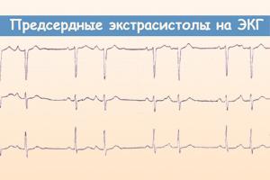 Признаки экстрасистолии на ЭКГ