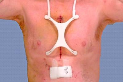 Защита шва после операции на сердце
