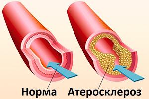 Нормальный сосуд и сосуд при атеросклерозе
