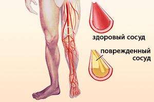 Здоровый и поврежденный сосуд