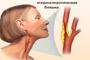 Атеросклероз шеи