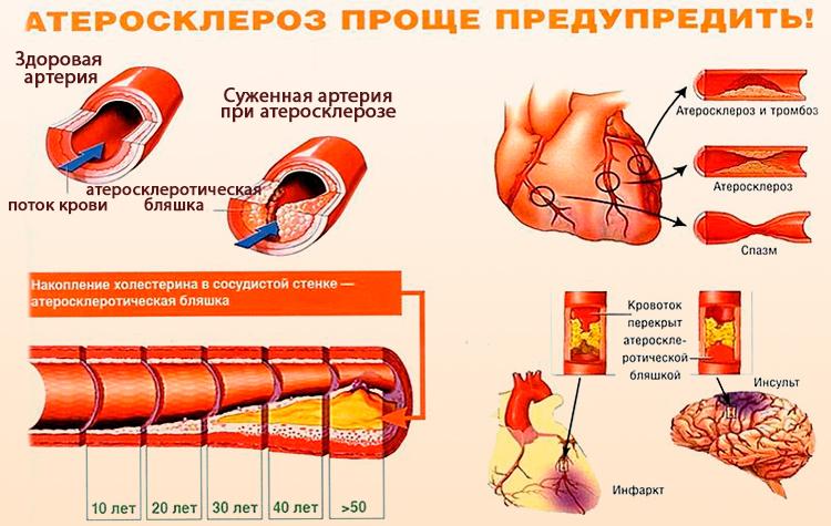 ateroskleroz smysl - Gambaran umum faktor risiko utama aterosklerosis