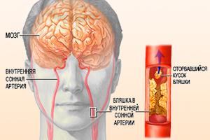 Атеросклероз артерий
