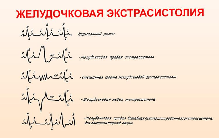 Типы экстрасистолии