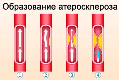 Образование атеросклероза