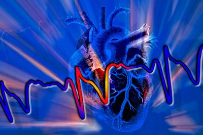 Оформление инвалидности после инфаркта миокарда