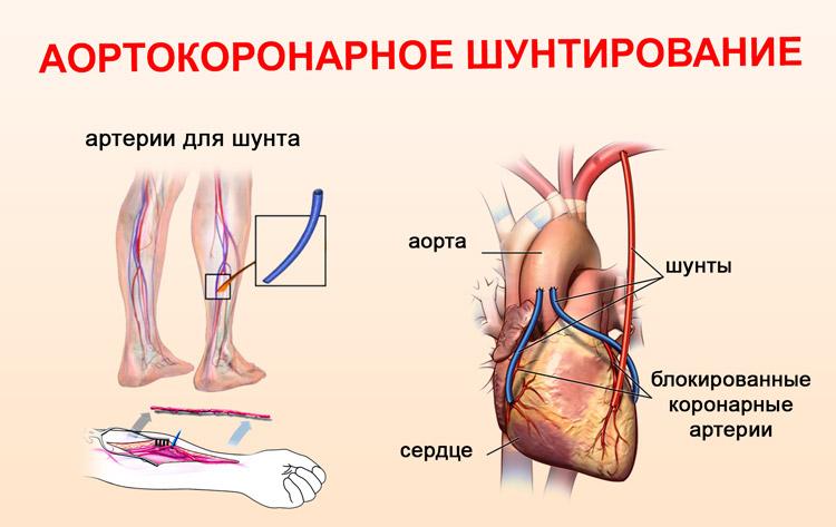 через какое время делают коронографию после инфаркта