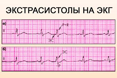 Экстрасистолы на кардиограмме