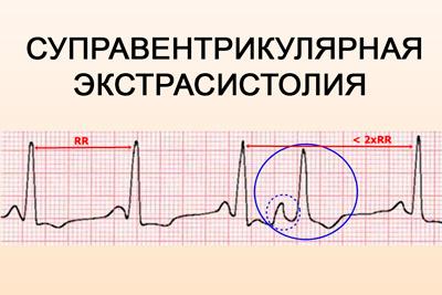 Наджелудочковая экстрасистолия: признаки на экг, лечение и ...