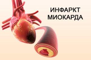 Инфаркт миокарда, вызванный атеросклерозом коронарных артерий
