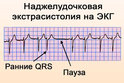 Наджелудочковая экстрасистолия на ЭКГ