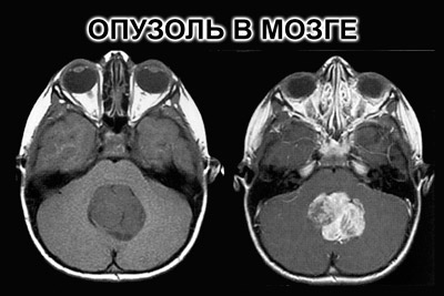 Опухоли ствола головного мозга