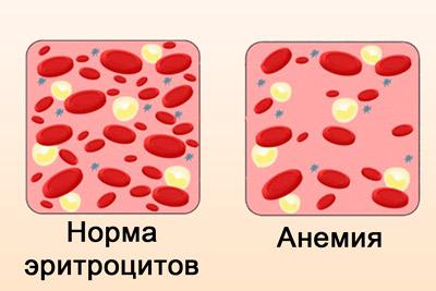 Нехватка эритроцитов