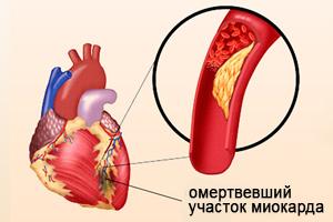 Некроз ткани сердца