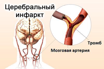Церебральный тип инфаркта