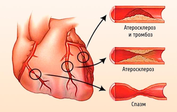 Мультифокальный атеросклероз сосудов