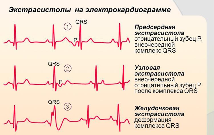 Экстрасистолы на электрокардиограмме