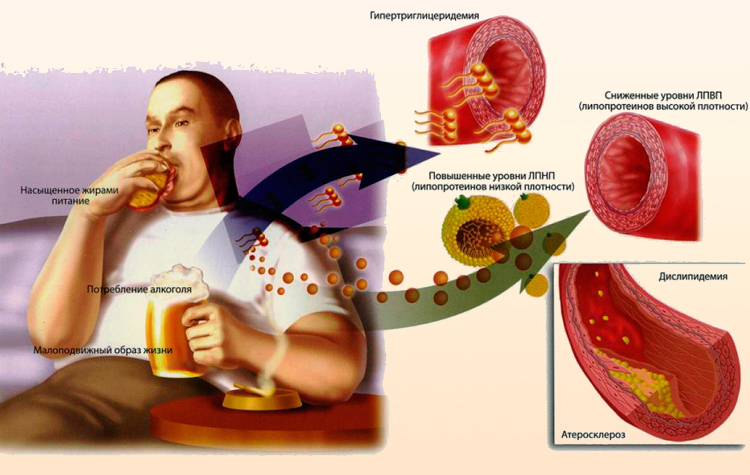 Причины возникновения атеросклероза