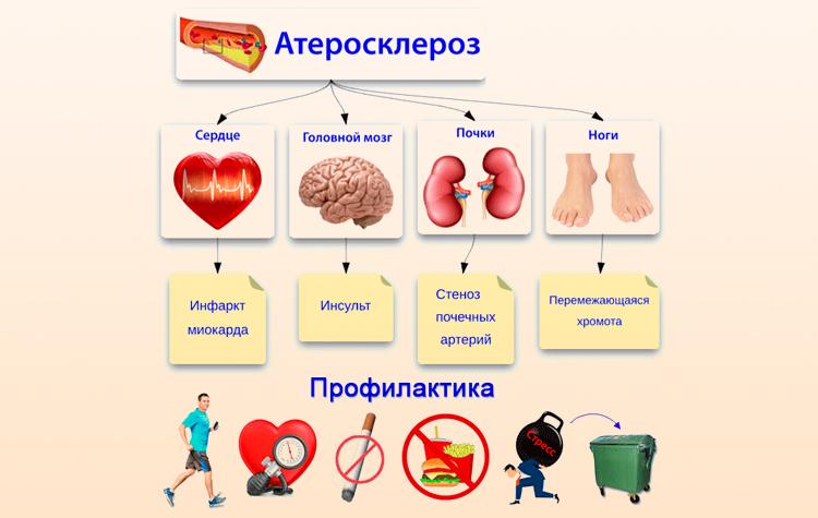 Осложнения и профилактика атеросклероза
