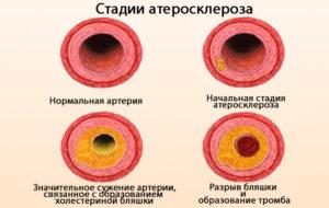 Стадии образования бляшек на артериях