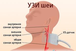 УЗИ шеи при атеросклерозе