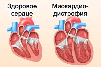 Сердце с миокардиодистрофией