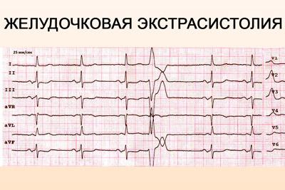 Вентрикулярная экстрасистолия на ЭКГ