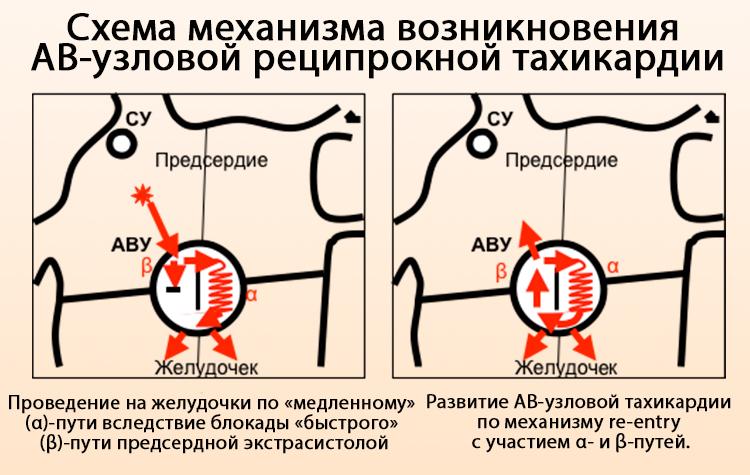 Схема возникновения АВ-узловой тахикардии
