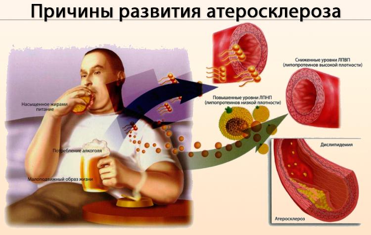 Факторы развития патологии