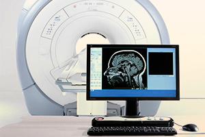 Диагностика церебрального атеросклероза при помощи МРТ
