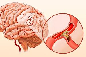 Холестериновая бляшка при атеросклерозе