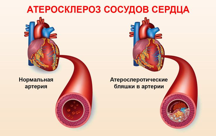 Атеросклеротические бляшки в сосудах сердца