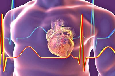 Причины развития синдрома «Бычье сердце»