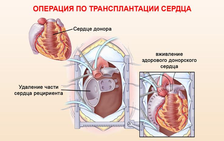 Проведение операции по трансплантации сердца