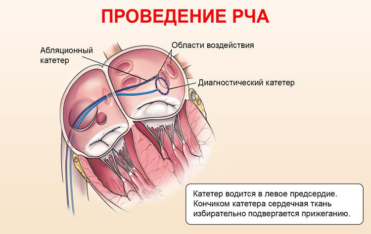 Проведение абляции сердца