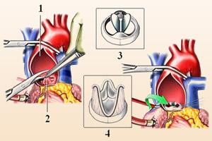 Операция по пересадке аортального клапана