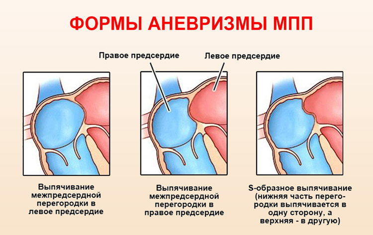 Виды аневризм межпредсердной перегородки