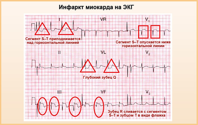 На кардиограмме инфаркт