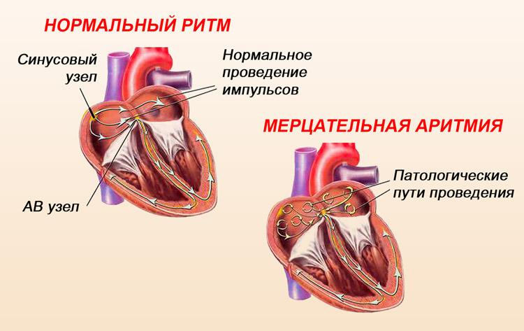 persistiruyushchaya mercatelnaya aritmiya 22 - A pitvarfibrilláció paroxizmális formája kezelést okoz