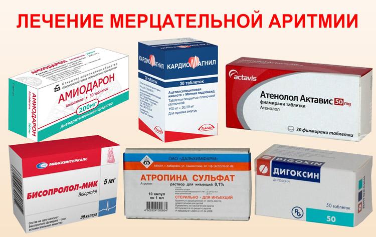 persistiruyushchaya mercatelnaya aritmiya 23 - A pitvarfibrilláció paroxizmális formája kezelést okoz