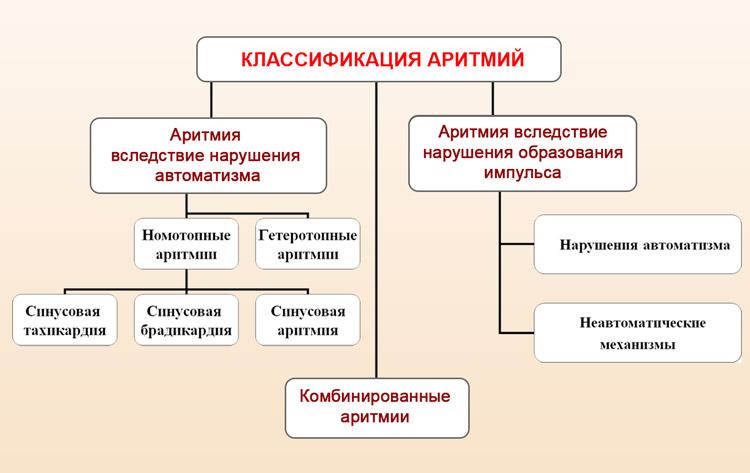 Классификация аритмии