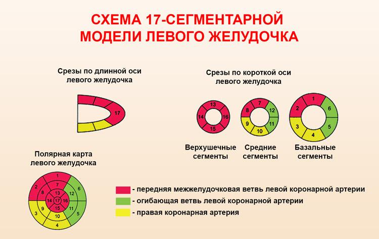 Исследование левого желудочка методом сцинтиграфии