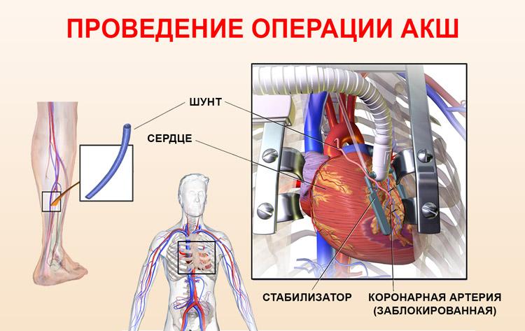 Шунтирование аорты сердца