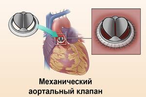 Искусственный клапан сердца