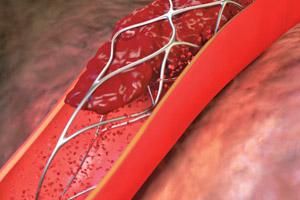 Образование тромба в стенте