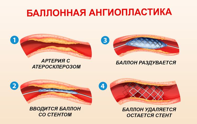 Этапы баллонной ангиопластики